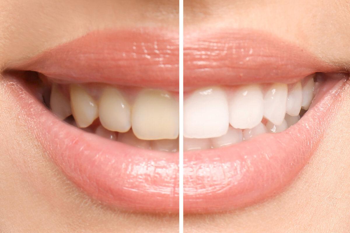 Estetica Dentara si Faciala Brasov