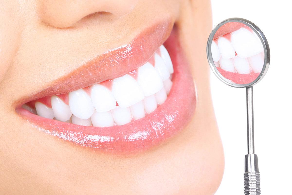 Profilaxie Dentara Brasov